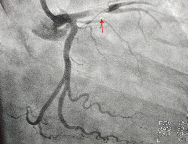 Before Coronary Angioplasty 2