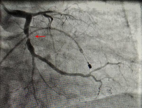 Before Coronary Angioplasty 4