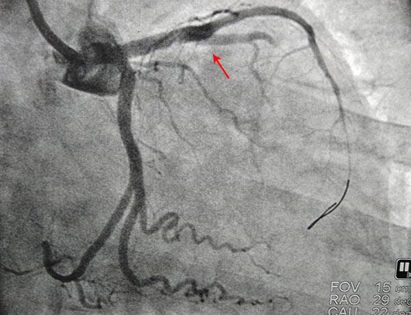 After Coronary Angioplasty 5