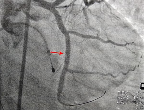 After Coronary Angioplasty 9